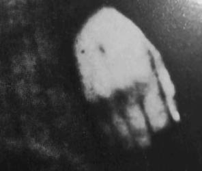 Hedvis stigmata på hendene