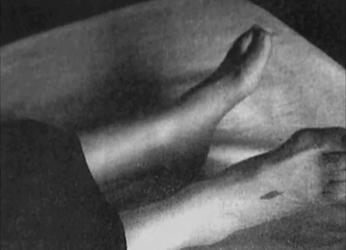 Hedvigs stigmata på føttene